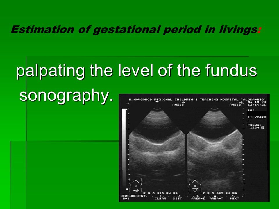Estimation of gestational period in livings: palpating the level of the fundus sonography.