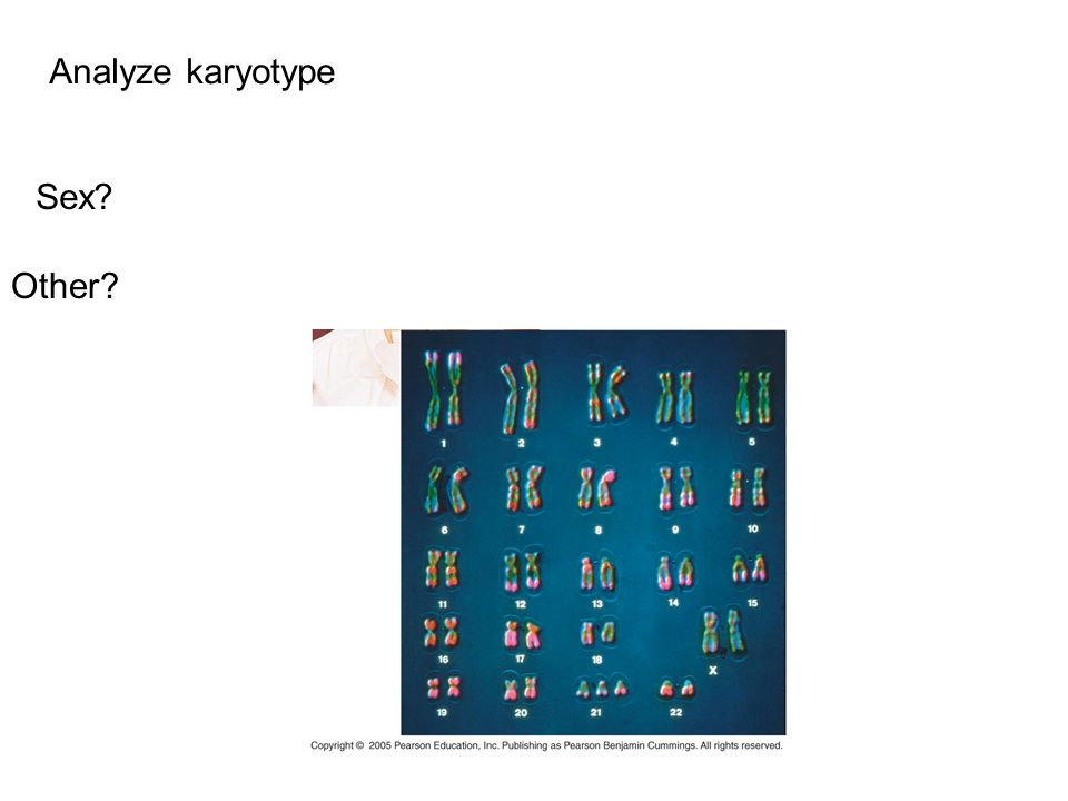 Analyze karyotype Sex Other