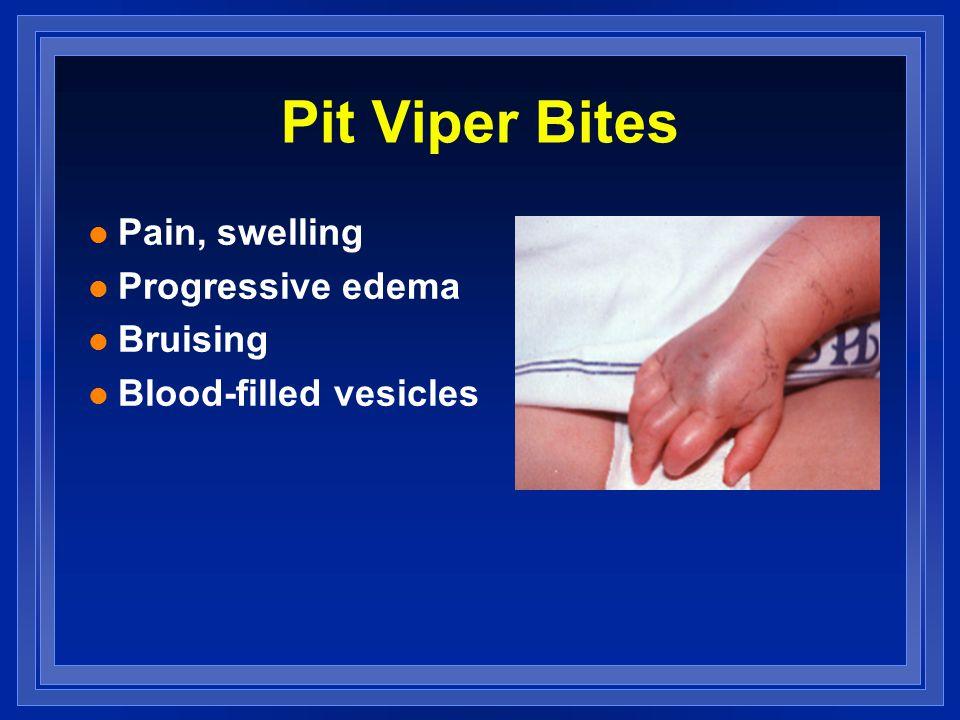 Pit Viper Bites l Pain, swelling l Progressive edema l Bruising l Blood-filled vesicles