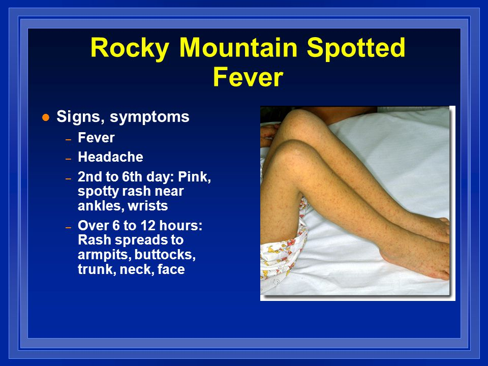 Rocky Mountain Spotted Fever l Signs, symptoms – Fever – Headache – 2nd to 6th day: Pink, spotty rash near ankles, wrists – Over 6 to 12 hours: Rash s