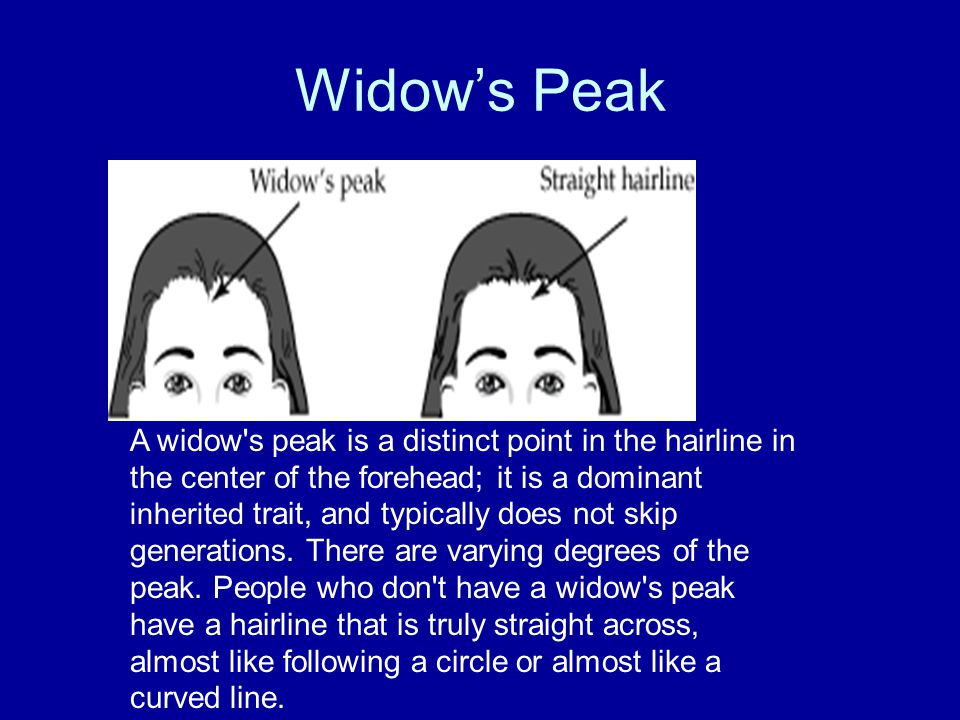 Widow's Peak A widow s peak is a distinct point in the hairline in the center of the forehead; it is a dominant inherited trait, and typically does not skip generations.