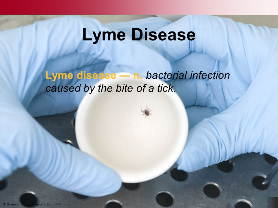 Preventing Lyme Disease Avoid tick-infested areas Wear long clothing Use tick repellent Perform tick checks Remove ticks properly © Business & Legal Reports, Inc.