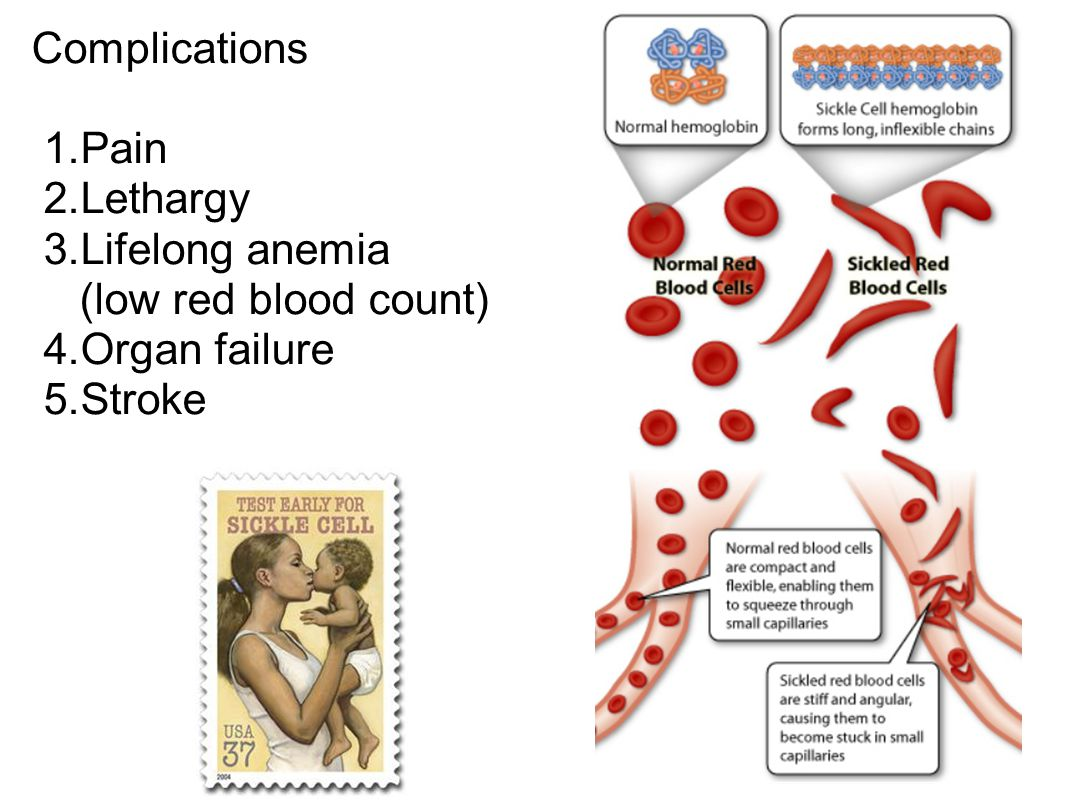 Complications 1.Pain 2.Lethargy 3.Lifelong anemia (low red blood count) 4.Organ failure 5.Stroke