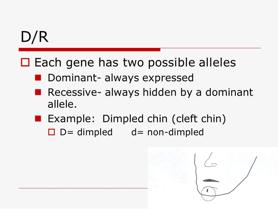 D/R  Each gene has two possible alleles Dominant- always expressed Recessive- always hidden by a dominant allele. Example: Dimpled chin (cleft chin)