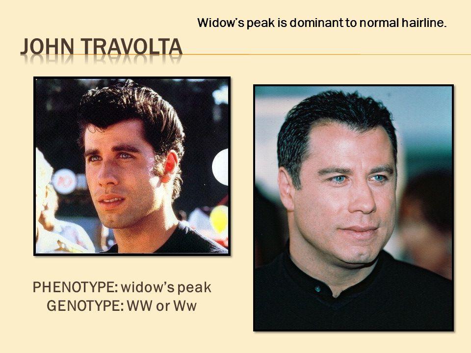 PHENOTYPE: widow's peak GENOTYPE: WW or Ww Widow's peak is dominant to normal hairline.