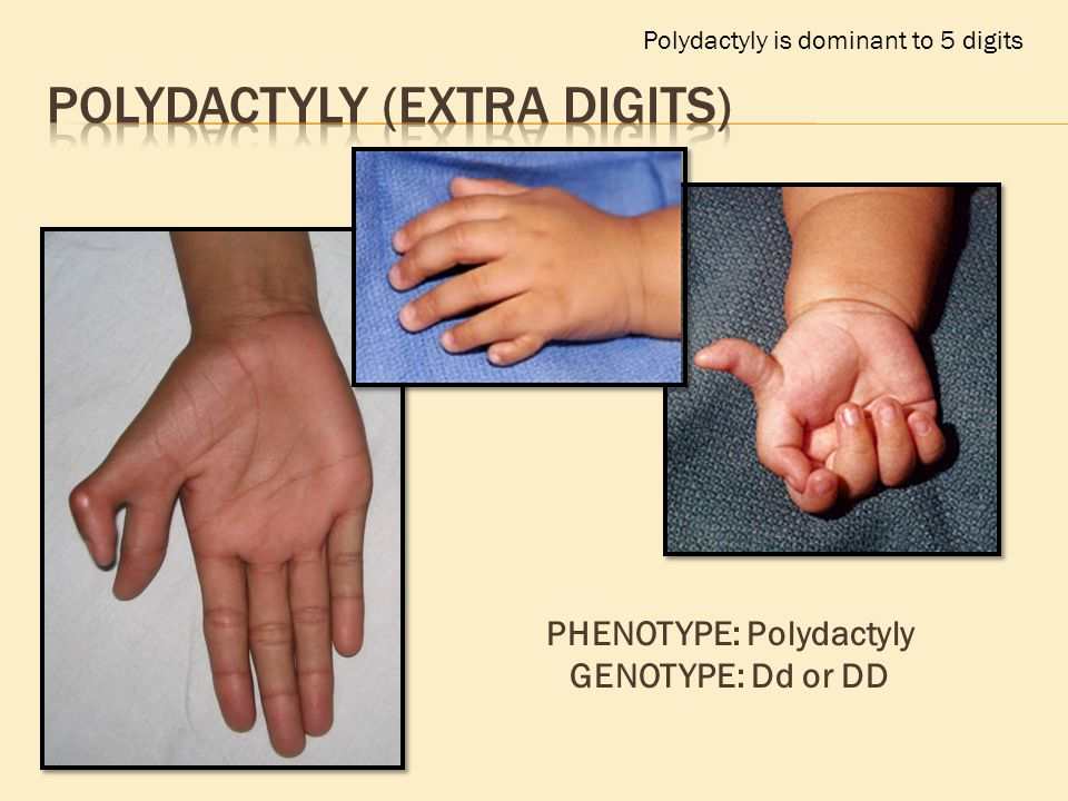 Polydactyly is dominant to 5 digits PHENOTYPE: Polydactyly GENOTYPE: Dd or DD