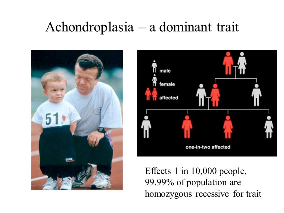 Achondroplasia – a dominant trait Effects 1 in 10,000 people, 99.99% of population are homozygous recessive for trait