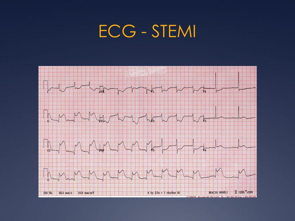 ECG - STEMI
