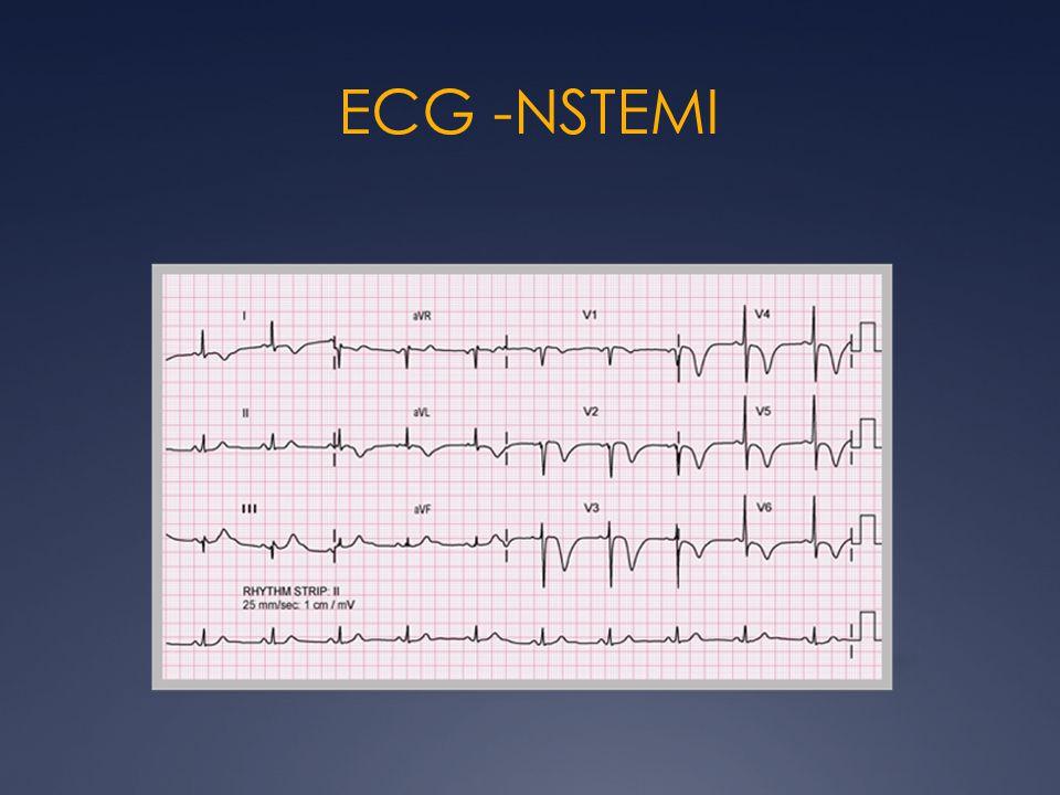ECG -NSTEMI