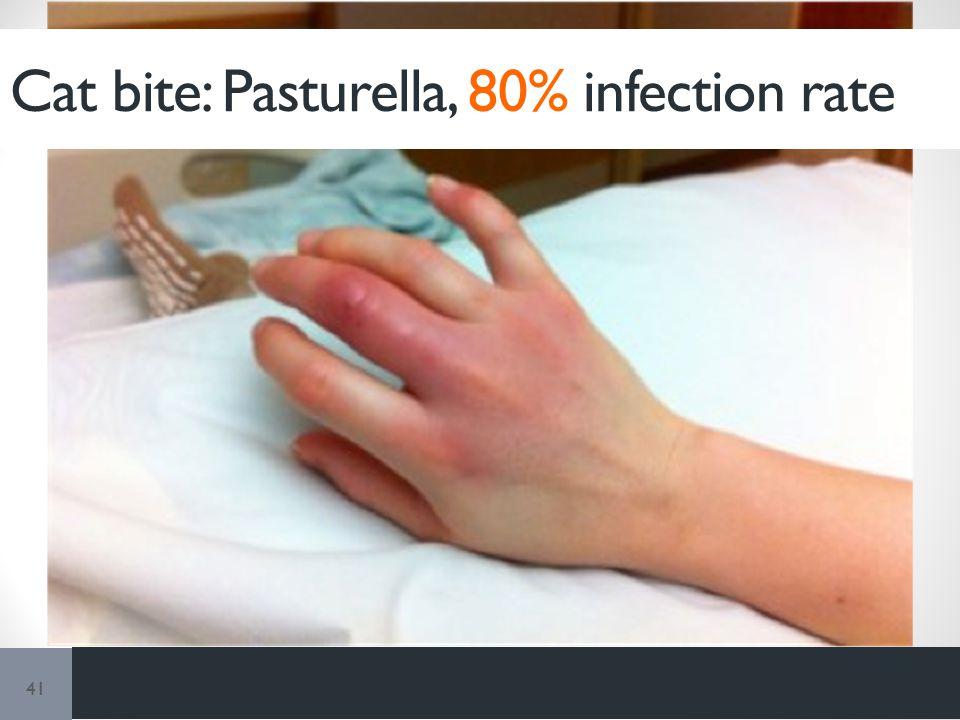 41 Cat bite: Pasturella, 80% infection rate