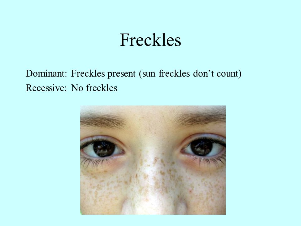 Freckles Dominant: Freckles present (sun freckles don't count) Recessive: No freckles