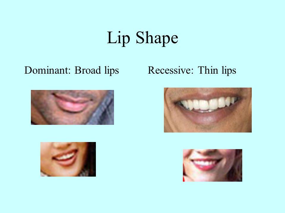 Chin Shape Dominant: Normal chin Recessive: Receding chin