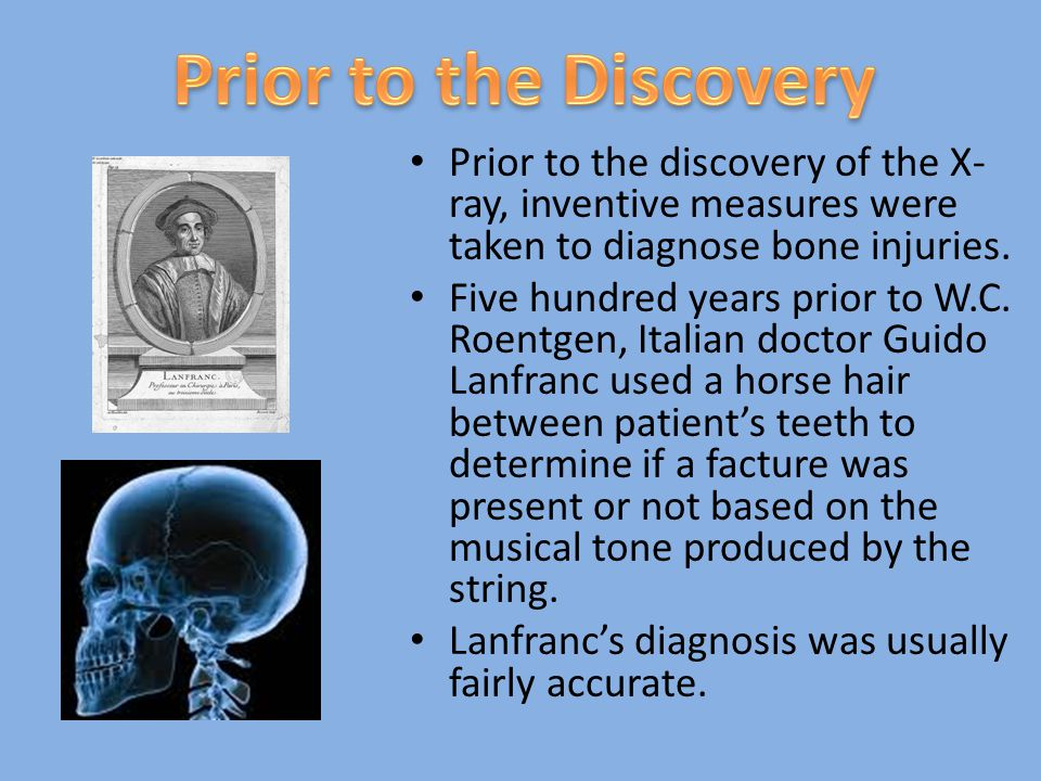 Prior to the discovery of the X- ray, inventive measures were taken to diagnose bone injuries. Five hundred years prior to W.C. Roentgen, Italian doct