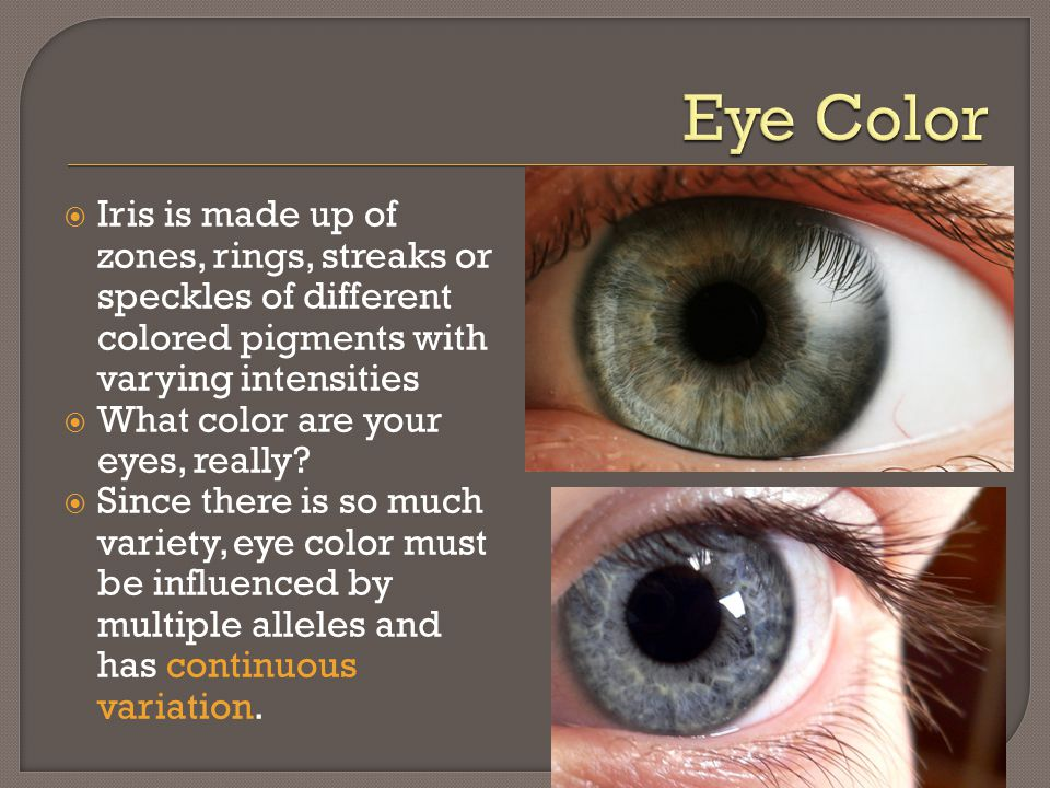  Iris is made up of zones, rings, streaks or speckles of different colored pigments with varying intensities  What color are your eyes, really?  Si