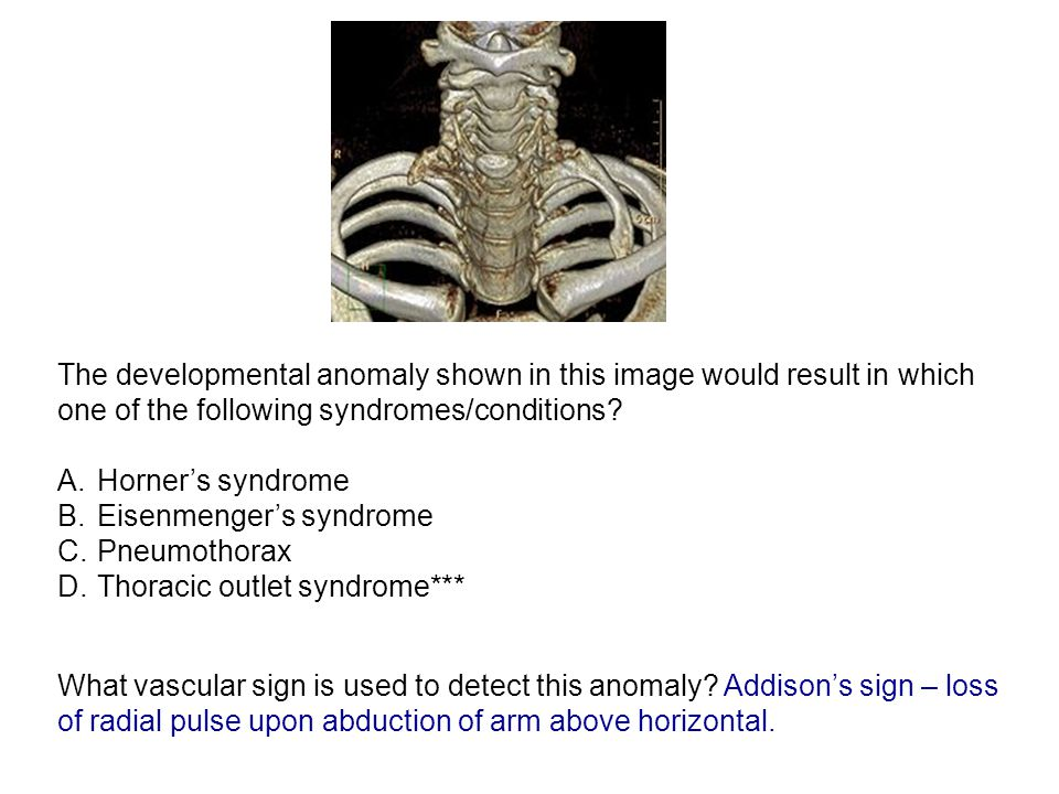 The developmental anomaly shown in this image would result in which one of the following syndromes/conditions.
