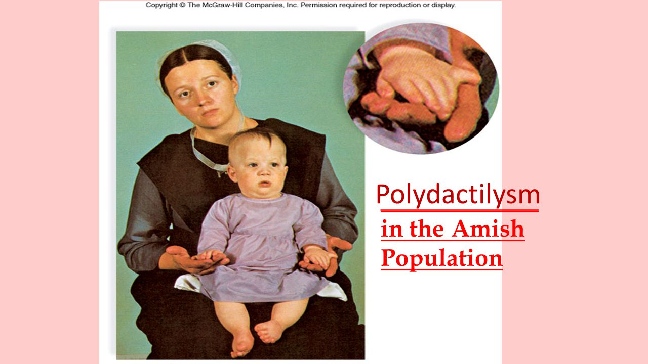 _____________ in the Amish Population Polydactilysm