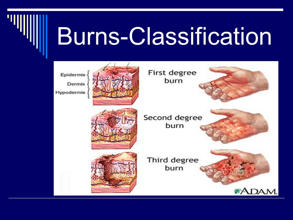 Burns-Classification