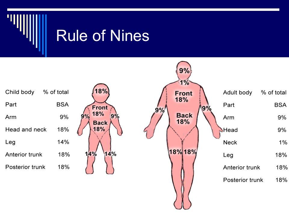 Rule of Nines