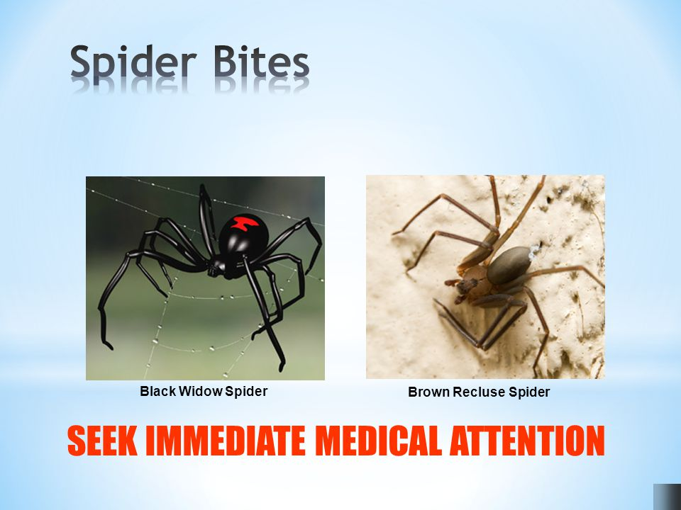 Black Widow Spider Brown Recluse Spider SEEK IMMEDIATE MEDICAL ATTENTION