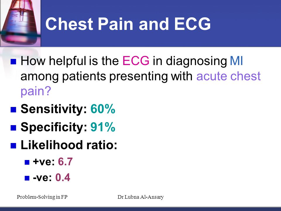 Chest Pain and ECG How helpful is the ECG in diagnosing MI among patients presenting with acute chest pain.