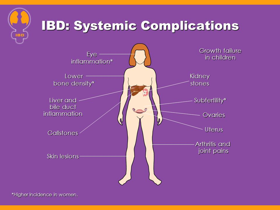 Influence of Gender on Illness-Related Concerns in IBD Study of 343 men and women Study of 343 men and women –Women report higher levels of symptom severity (P=.04) –Higher levels of rating of IBD patient concerns (P<.001) Maunder R, et al.