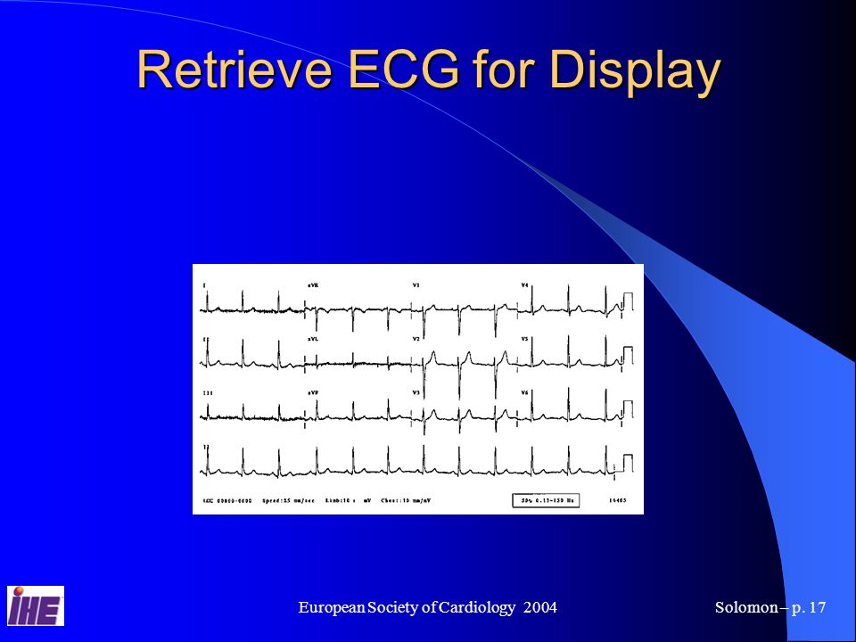 European Society of Cardiology 2004Solomon – p. 17 Retrieve ECG for Display