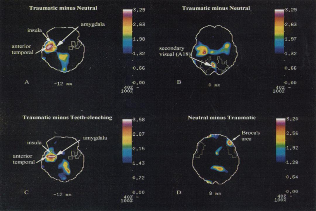 Between Stimulus and Response Stimulus S Stimulus Sensory Thalamus Amygdala Very Fast Slower Response Cortex Hippocampus Neuroregulatory Intervention Psychotherapy Psychopharmacology Social Environmental Intervention (LeDoux, 1996)