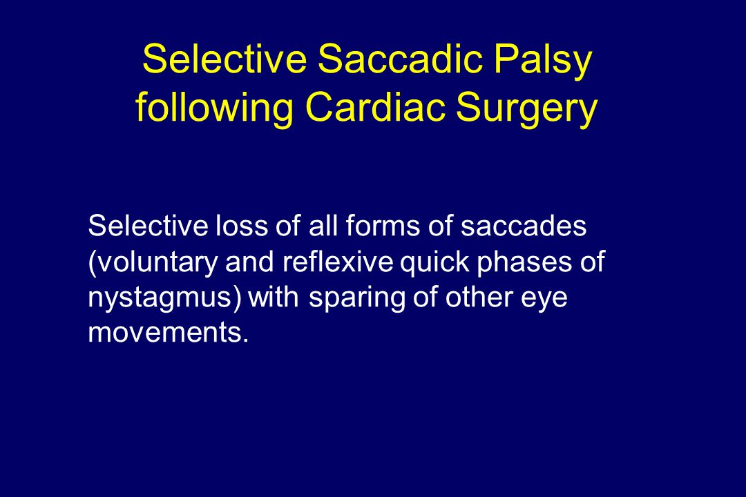 Selective Saccadic Palsy following Cardiac Surgery Selective loss of all forms of saccades (voluntary and reflexive quick phases of nystagmus) with sp