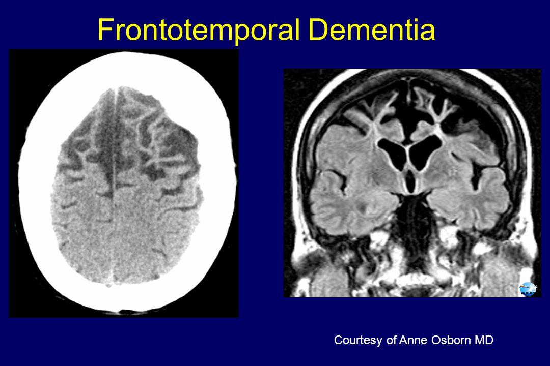 Frontotemporal Dementia Courtesy of Anne Osborn MD