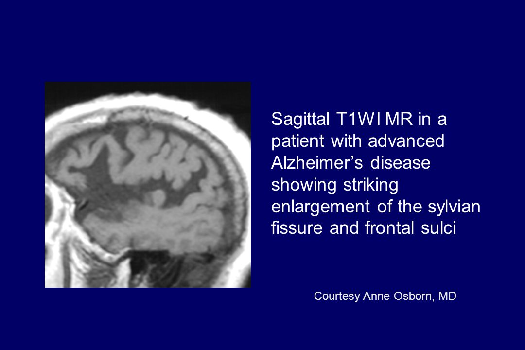 Sagittal T1WI MR in a patient with advanced Alzheimer's disease showing striking enlargement of the sylvian fissure and frontal sulci Courtesy Anne Os