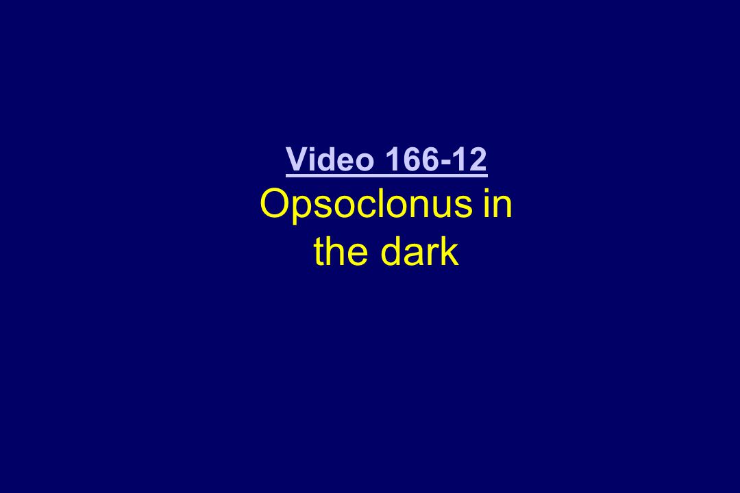 Video 166-12 Video 166-12 Opsoclonus in the dark