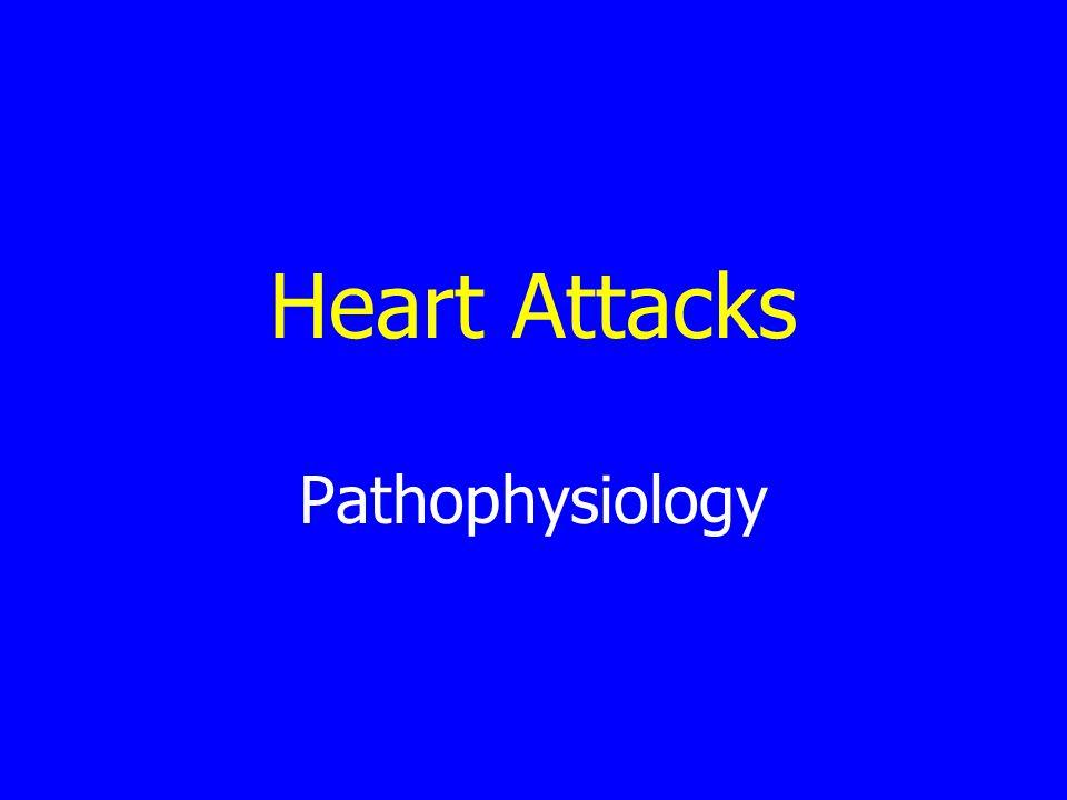 Heart Attacks Pathophysiology