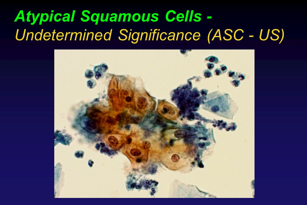Atypical Squamous Cells - Undetermined Significance (ASC - US)