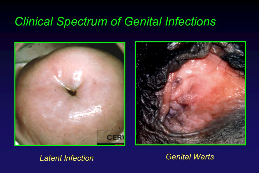 Clinical Spectrum of Genital Infections Latent Infection Genital Warts