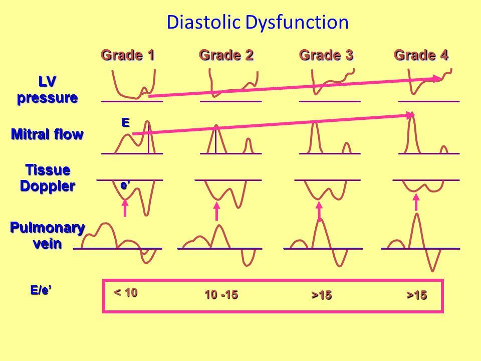 Diastolic Dysfunction LV pressure Grade 1 Grade 2 Grade 3 Grade 4 Mitral flow Tissue Doppler Pulmonary vein E/e' E e' < 10 10 -15 >15>15