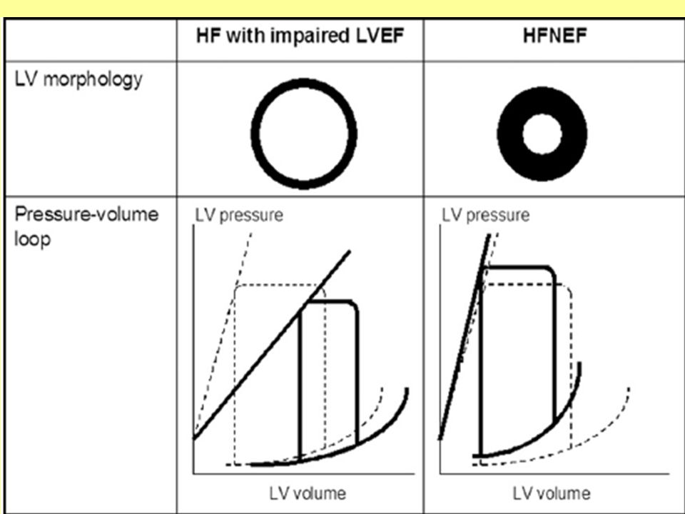 Diagnosis of HFNEF 2007- European Working Group on HFNEF 3 conditions must be fulfilled – 1) symptoms & signs of HF – 2) LVEF >50% in a nondilated LV (LVEDV<97 ml/m2) – 3) evidence of ↑LV filling P 3 ways to ∆ ↑ LV filling P – invasive measurements – unequivocal TDI findings – combination of ↑natriuretic peptides & echo indices of LV diastolic function/LV filling P Paulus Wjet al -European Society of Cardiology.