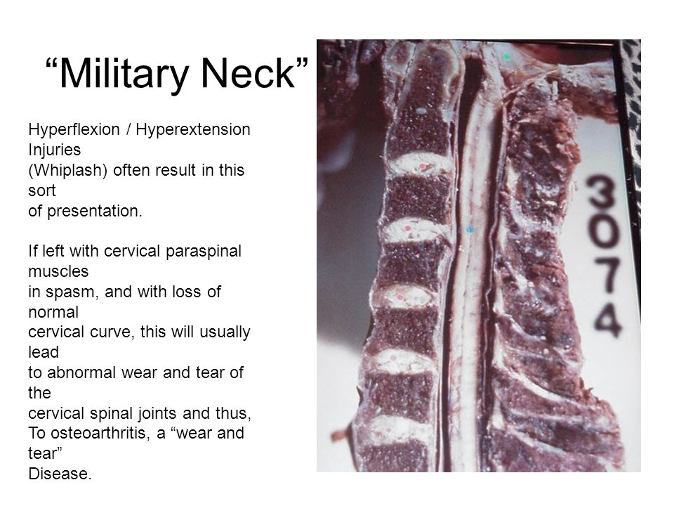 Military Neck Hyperflexion / Hyperextension Injuries (Whiplash) often result in this sort of presentation.