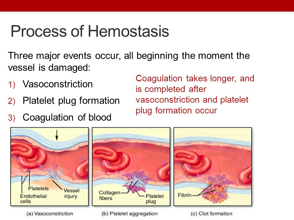 Process of Hemostasis Three major events occur, all beginning the moment the vessel is damaged: 1) Vasoconstriction 2) Platelet plug formation 3) Coagulation of blood Coagulation takes longer, and is completed after vasoconstriction and platelet plug formation occur