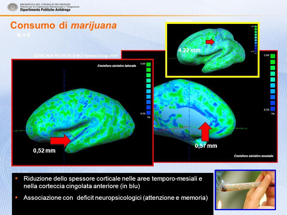 Consumo di marijuana  Riduzione dello spessore corticale nelle aree temporo-mesiali e nella corteccia cingolata anteriore (in blu)  Associazione con