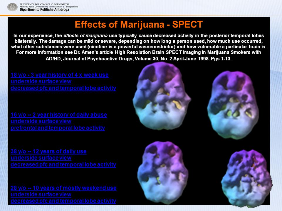 Effects of Marijuana - SPECT In our experience, the effects of marijuana use typically cause decreased activity in the posterior temporal lobes bilaterally.