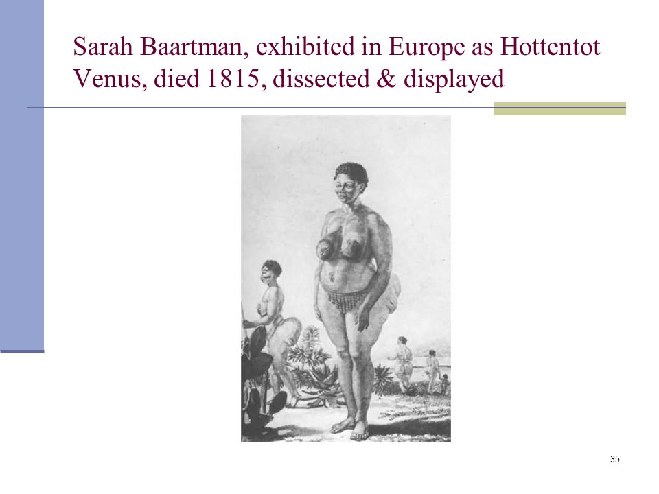 35 Sarah Baartman, exhibited in Europe as Hottentot Venus, died 1815, dissected & displayed