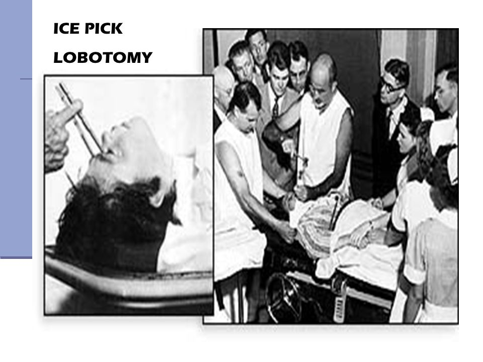 41 ICE PICK LOBOTOMY