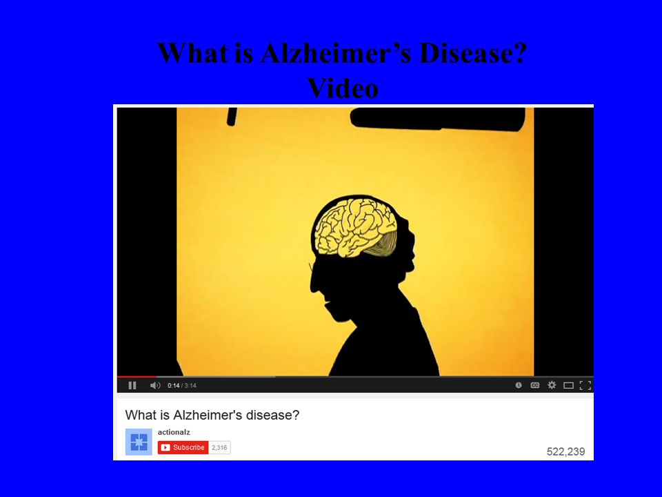 What is Alzheimer's Disease Video