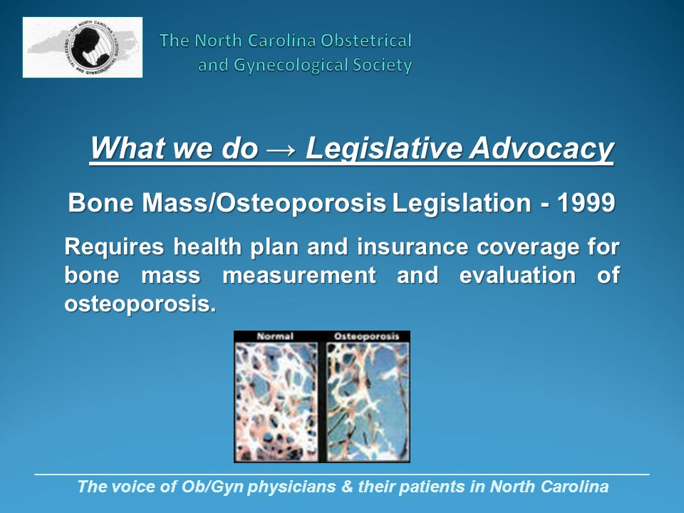 _________________________________________________________________ The voice of Ob/Gyn physicians & their patients in North Carolina Bone Mass/Osteoporosis Legislation - 1999 Requires health plan and insurance coverage for bone mass measurement and evaluation of osteoporosis.