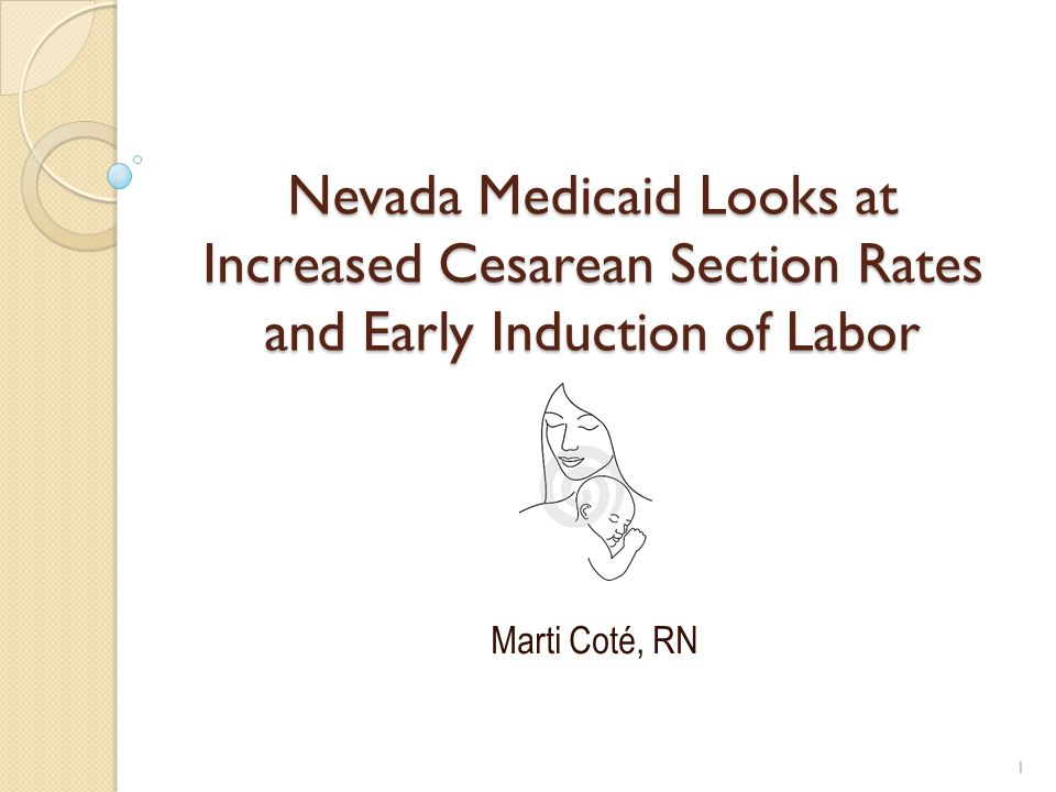 Nevada Medicaid Looks at Increased Cesarean Section Rates and Early Induction of Labor Marti Coté, RN 1