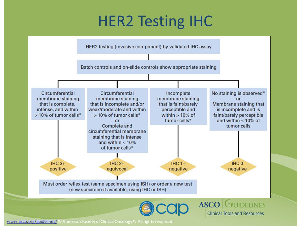 HER2 Testing IHC www.asco.org/guidelines/www.asco.org/guidelines/ © American Society of Clinical Oncology®.