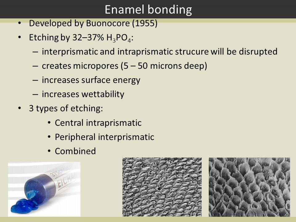 Enamel bonding Developed by Buonocore (1955) Etching by 32–37% H 3 PO 4 : – interprismatic and intraprismatic strucure will be disrupted – creates mic