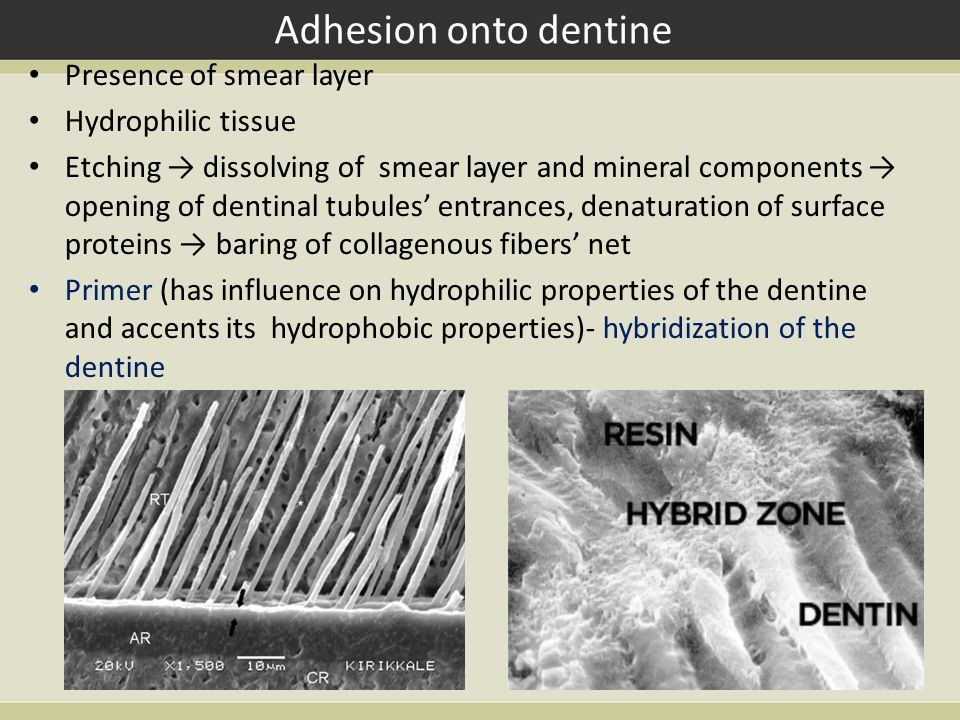 Adhesion onto dentine Presence of smear layer Hydrophilic tissue Etching → dissolving of smear layer and mineral components → opening of dentinal tubules' entrances, denaturation of surface proteins → baring of collagenous fibers' net Primer (has influence on hydrophilic properties of the dentine and accents its hydrophobic properties)- hybridization of the dentine