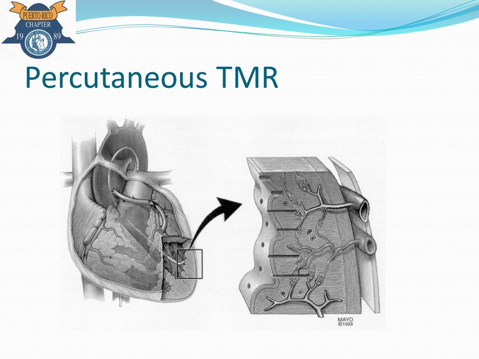 Percutaneous TMR
