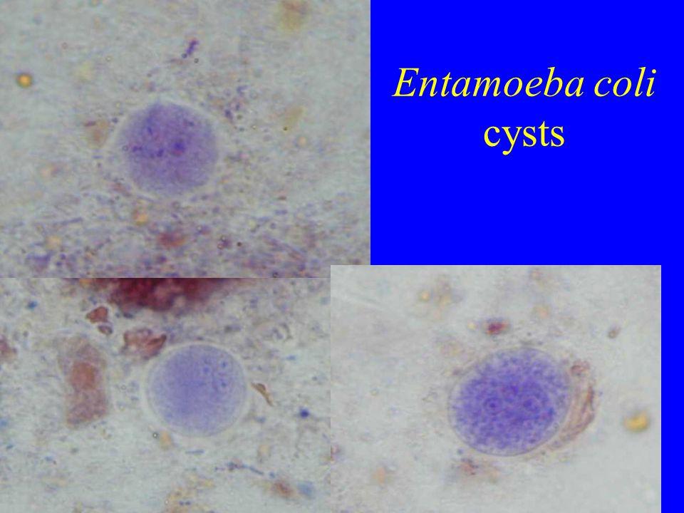Entamoeba coli cysts